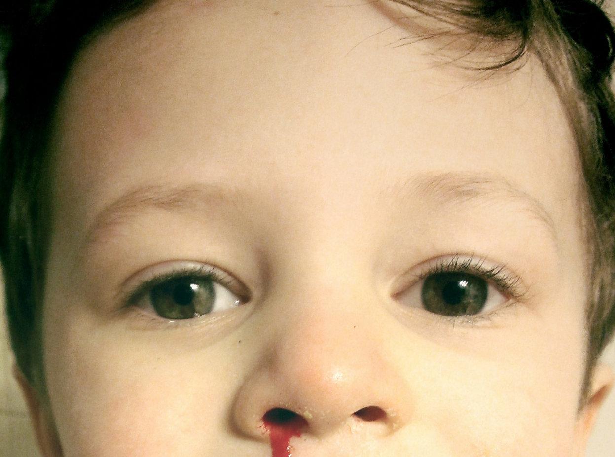 Kenali penyebab mimisan pada anak dan cara penanganannya